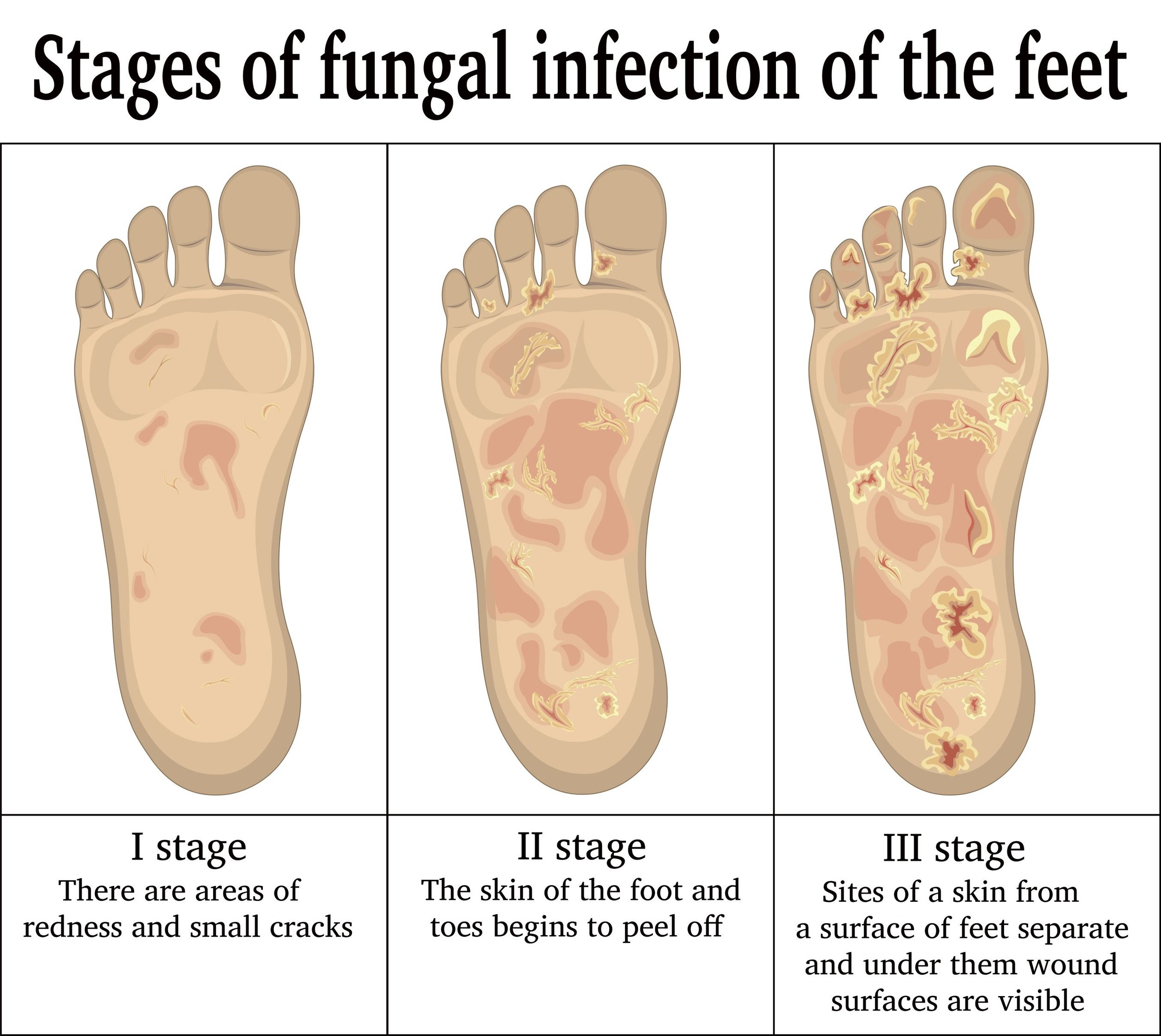 Fungal Foot Infections