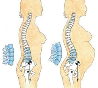 Changes in the spine during pregnancy