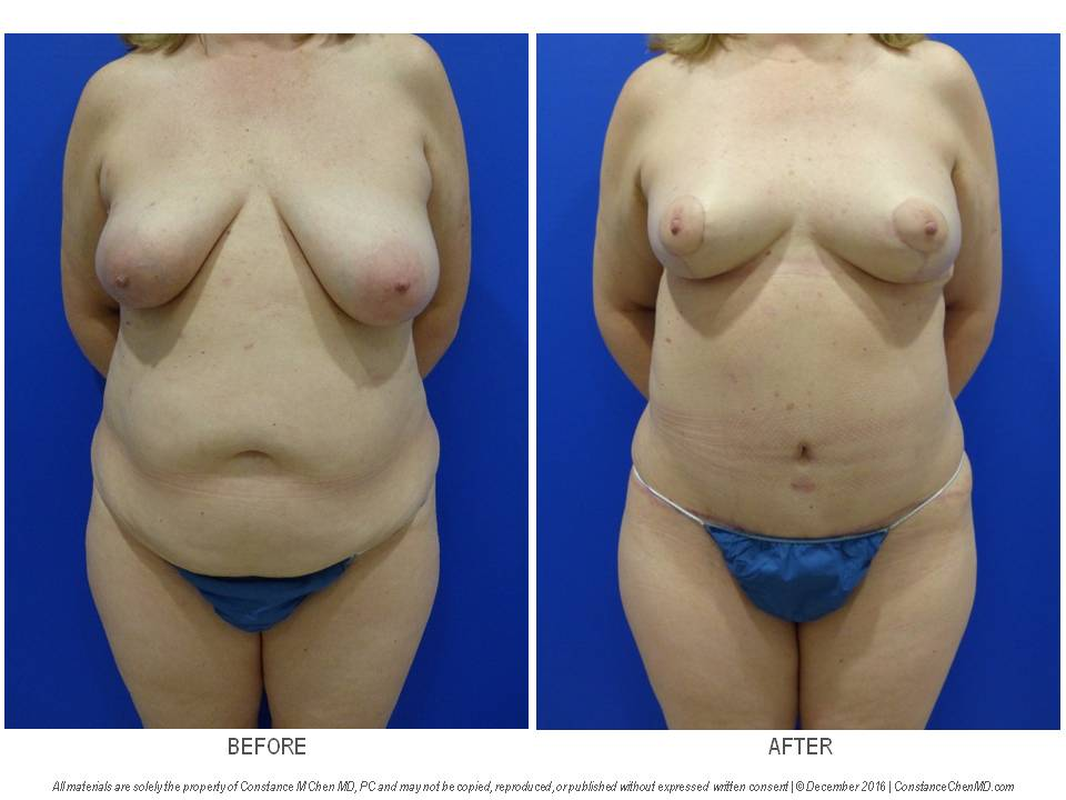 52-year-old woman with right breast cancer who underwent bilateral nipple-sparing mastectomies with immediate DIEP flap breast reconstruction with nerve grafts