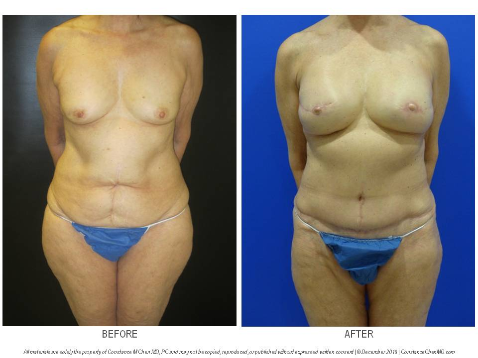 65-year-old woman with bilateral breast cancer who underwent bilateral skin-sparing mastectomies with immediate DIEP flap breast reconstruction and bilateral nipple reconstruction