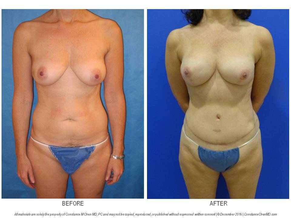51-year-old woman with left breast cancer who underwent bilateral nipple-sparing mastectomies with immediate DIEP flap breast reconstruction