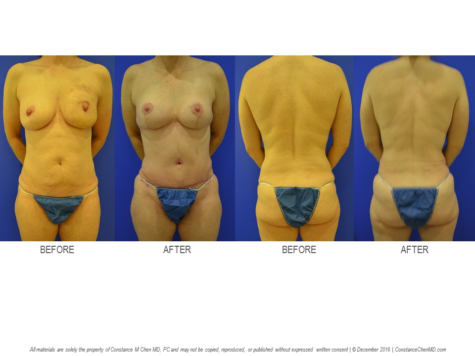 45-year-old woman (BMI 21.6) with bilateral breast cancer who underwent bilateral prophylactic nipple-sparing   mastectomies with immediate PAP flap breast reconstruction followed by an elective abdominoplasty.
