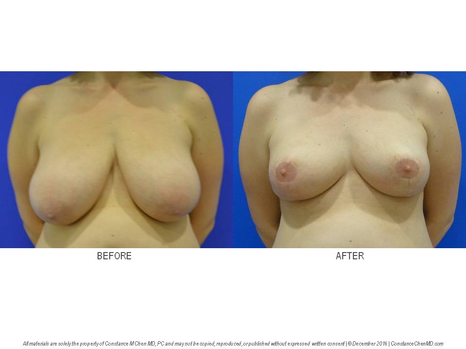 42-year-old woman (BMI 28) with history of symptomatic macromastia (38DD) who underwent bilateral reduction mammaplasty
