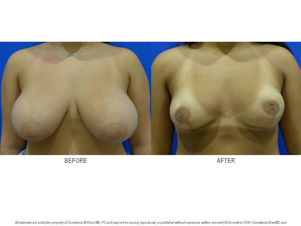 17-year-old woman (BMI 24.9) with symptomatic macromastia (34G) who underwent bilateral reduction mammaplasty