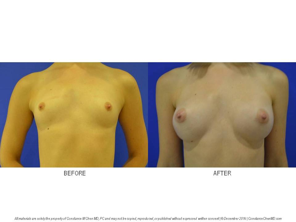23-year-old woman (BMI 17.2) with pectus carinatum who underwent bilateral augmentation mammaplasty with a 225 cc smooth round silicone gel subpectoral right breast implant and a 325 cc smooth round silicone gel subpectoral left breast implant