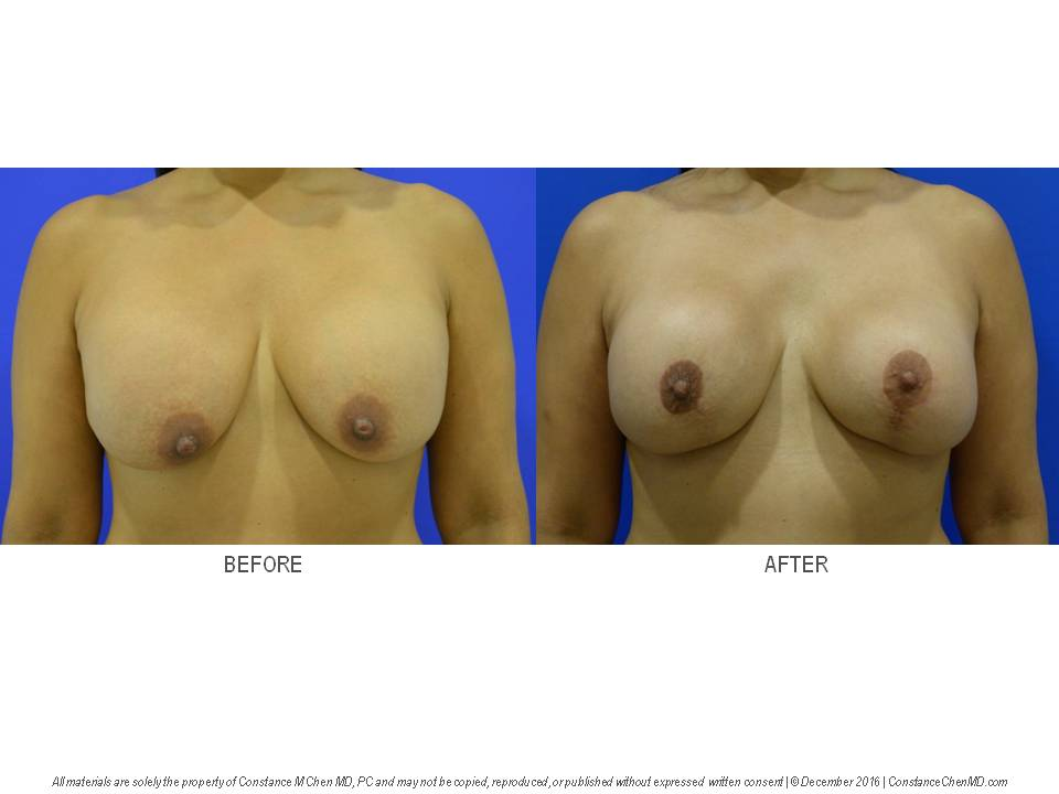 49-year-old woman with history of bilateral breast augmentation with silicone gel implants by another surgeon. Her breast implants ruptured, and Dr. Chen removed both breast implants with complete en bloc capsulectomies and performed a bilateral augmentation mastopexy.