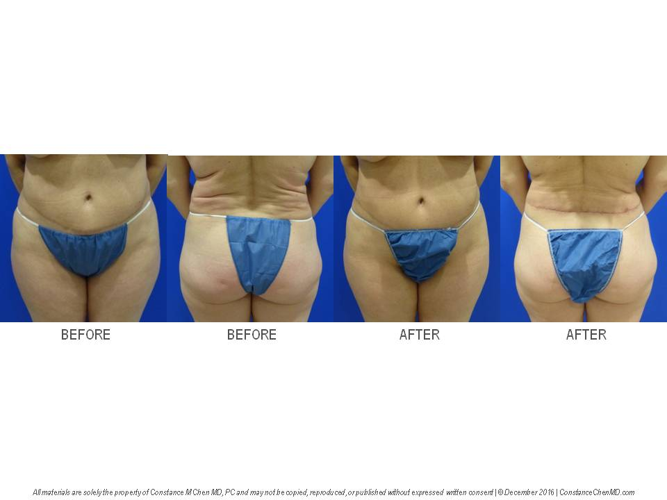 53-year-old woman with previous abdominoplasty and liposuction who wanted resection of the skin rolls in her lower back to improve the body contour