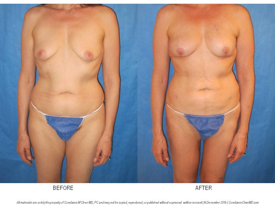 45-year-old woman who underwent bilateral nipple-sparing mastectomy and PAP flap breast reconstruction then underwent a second stage fat transfer from her abdomen, flanks, and bilateral thighs to add volume to her reconstructed breasts.