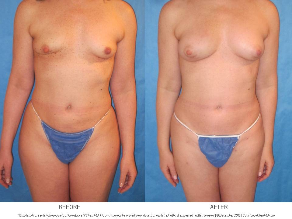 49-year-old woman with a history of right lumpectomy with radiation treatment underwent two rounds of fat transfer from her abdomen, flanks, and bilateral thighs to increase the volume and symmetry of her bilateral breasts.