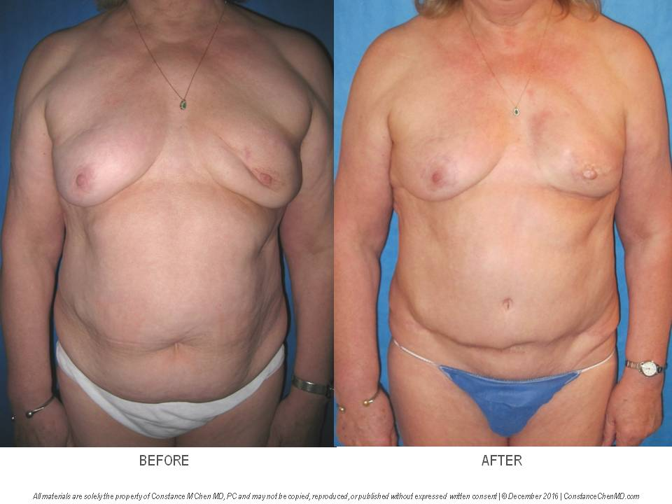 67-year-old woman with a history of left lumpectomy and radiation and multiple breast biopsies who underwent left mastectomy with left DIEP flap breast reconstruction, left nipple reconstruction and right mastopexy for symmetry.
