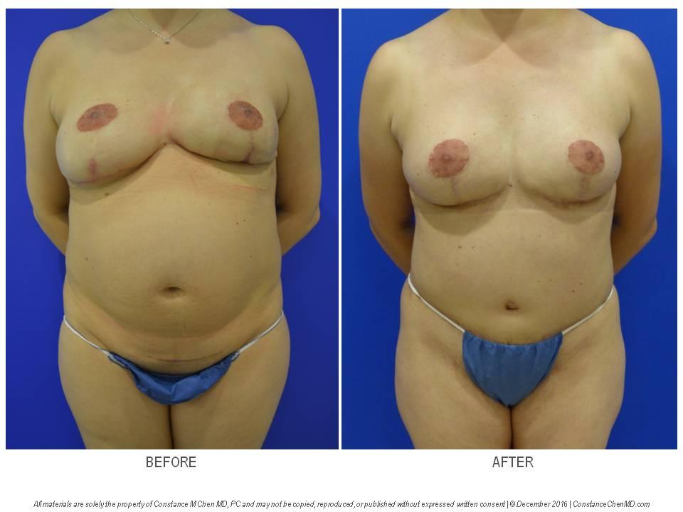 Implant extrusion