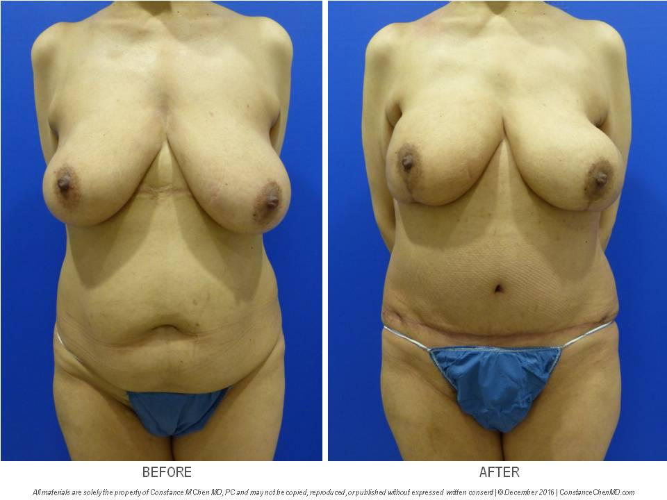 52-year-old woman with right breast who underwent bilateral nipple-sparing mastectomies with bilateral DIEP flap breast reconstruction.