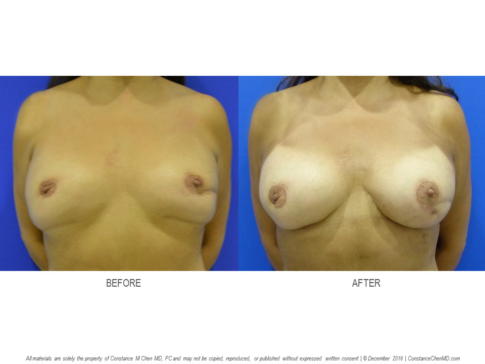 Malpositioning of Implant