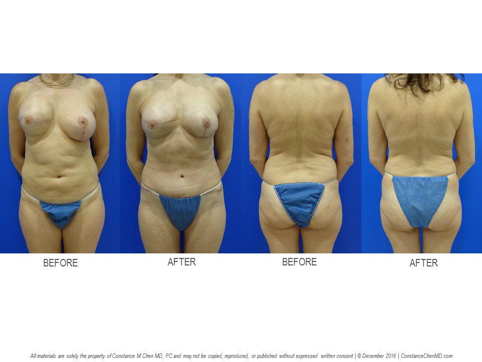 51-year-old woman with history of right mastectomy and cohesive gel implant reconstruction and left augmentation mastopexy by another surgeon who developed severe capsular contracture. Dr. Chen performed removal of bilateral breast implants, left prophylactic nipple-sparing mastectomy, and bilateral four-flap breast reconstruction with bilateral PAP and DIEP flaps.