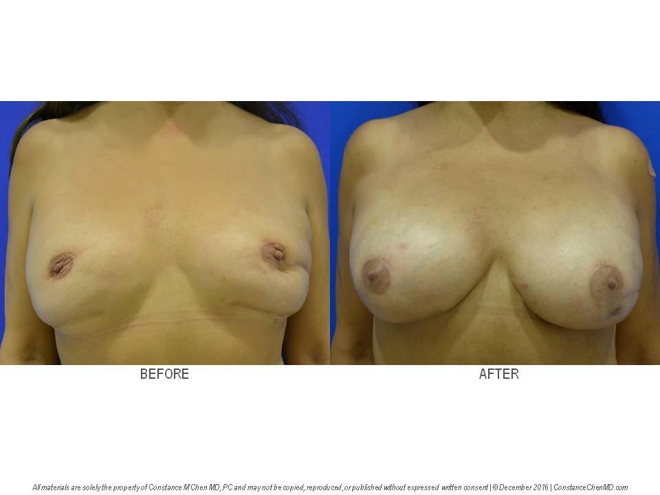 56-year-old woman with tight uncomfortable breasts after bilateral nipple-sparing mastectomies with sub pectoral breast implants and eight different revisions by different surgeons over 25 years. The patient underwent removal of her under-the-muscle breast implants and replacement with above-the-muscle cohesive gel breast implants by Dr. Chen.