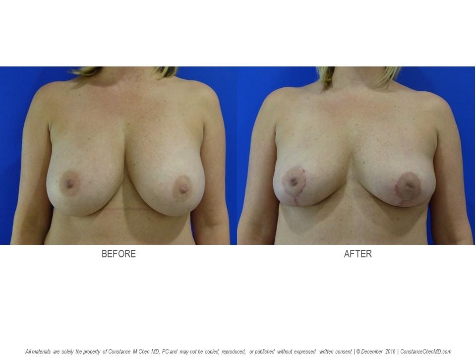 Breast Implant Illness
