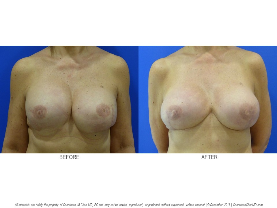 55-year-old woman with tightness after bilateral mastectomies and subpectoral breast implants with multiple revisions by another surgeon. Dr. Chen removed her bilateral under-the-muscle breast implants and replaced them with bilateral above-the-muscle cohesive gel breast implants.