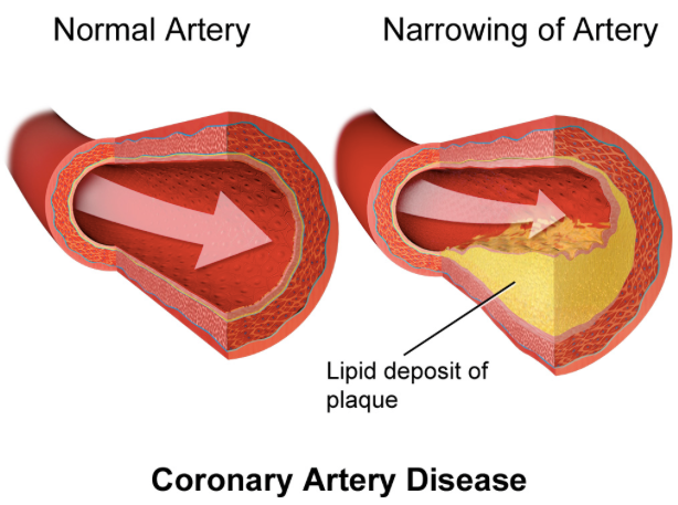 coronary_artery_atherosclerosis_-_Google_Search.png