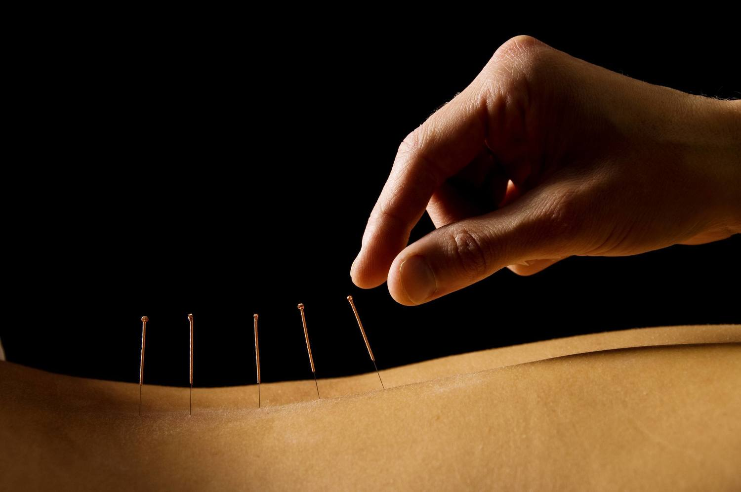 Dry Needling and Chiropractic Care in Herndon, Sterling and Northern, VA