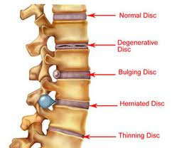 Difference-between-bulging-disc-and-herniated-disc-jpg.jpg
