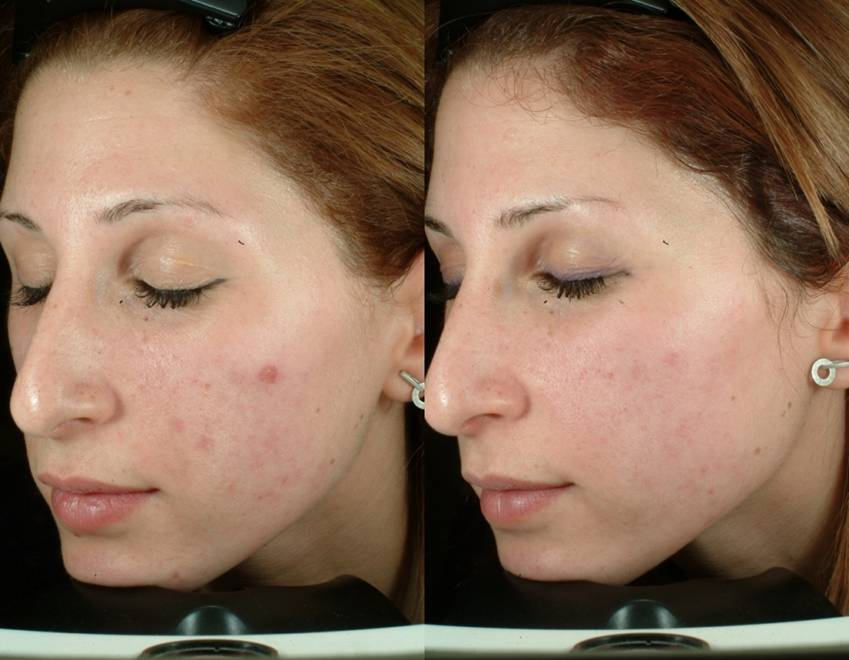 ENERPEEL SA BEFORE & AFTER 1 SESSION