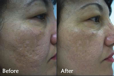 ENERPEEL PYRUVIC BEFORE & AFTER 3 SESSIONS + PRESCRIPTION PRODUCTS + DERMA FNS NEEDLING X 4 SESSIONS