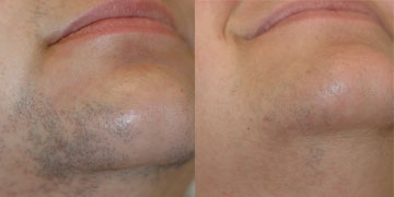 DIODE LASER HAIR REMOVAL BEFORE & AFTER 4 SESSION