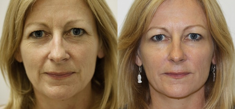 TSHAPE FACE LIFT, SKIN TIGHTENING RADIO FREQUENCY BEFORE & AFTER 6 SESSIONS