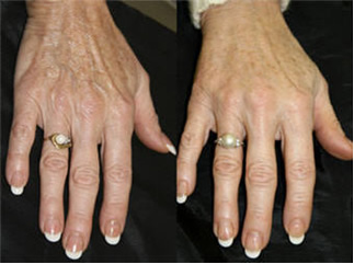 ENERPEEL HANDS BEFORE & AFTER 4 SESSIONS