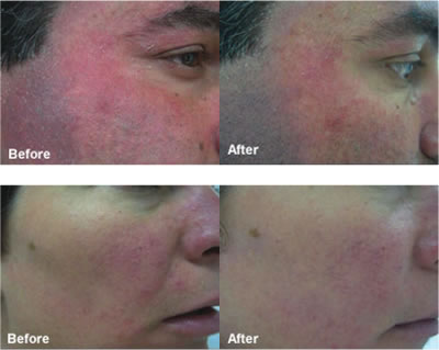 ENERPEEL MA PEEL BEFORE & AFTER 6 SESSIONS EVERY 14 DAYS + PRESCRIPTION SKINCARE