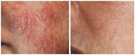 THREAD VEIN LASER REMOVAL BEFORE & AFTER 3 SESSIONS