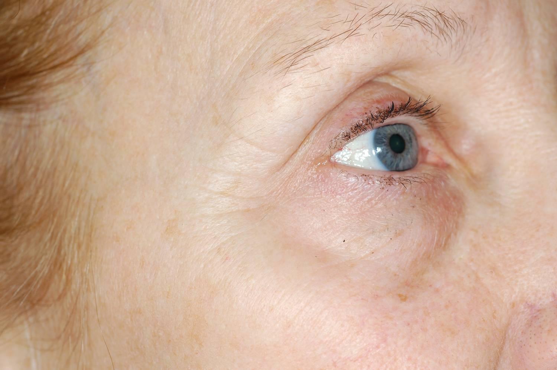 Enerpeel EL pigment eye after.jpg
