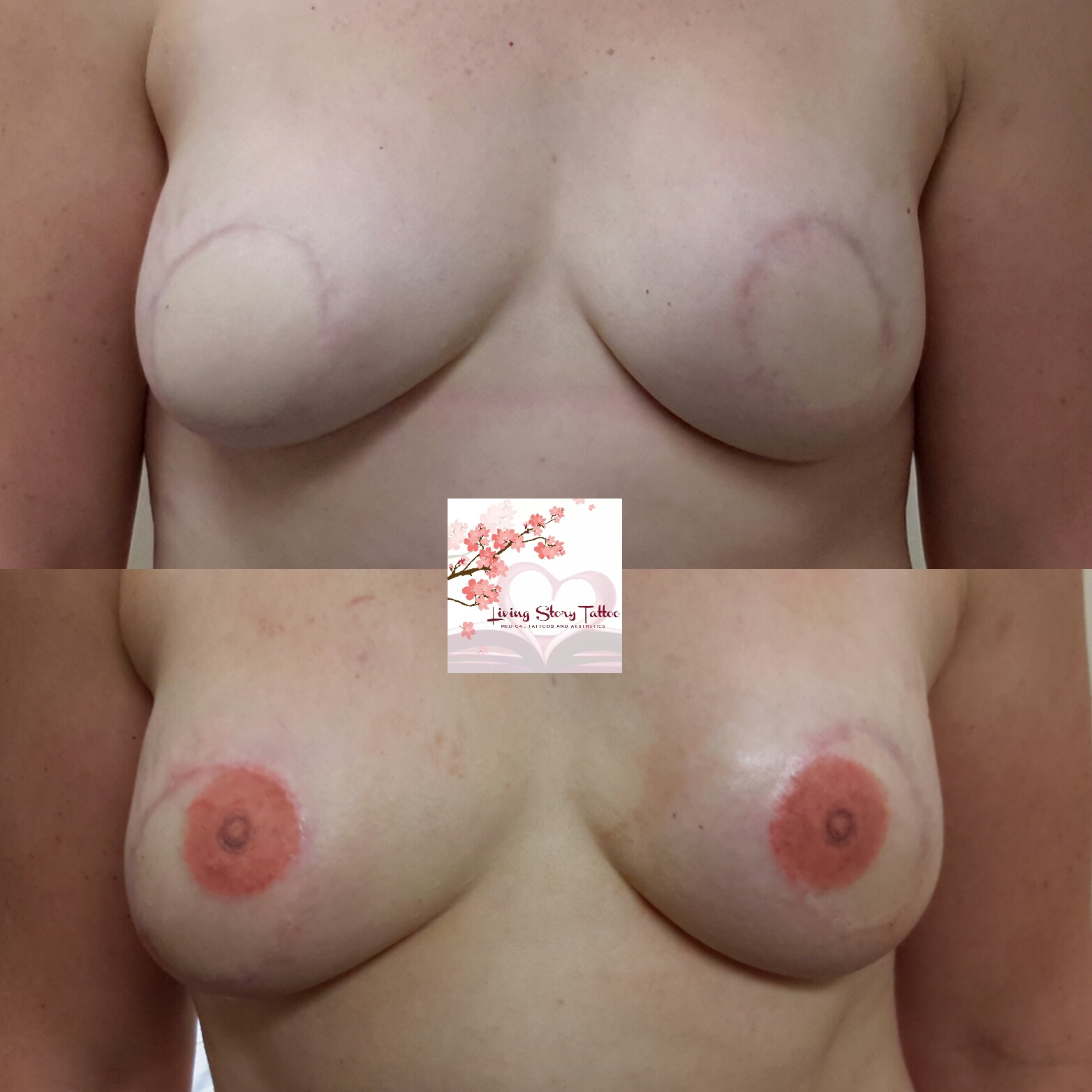 Bilateral DIEP Flap w/ 3D Nipple Tattoos