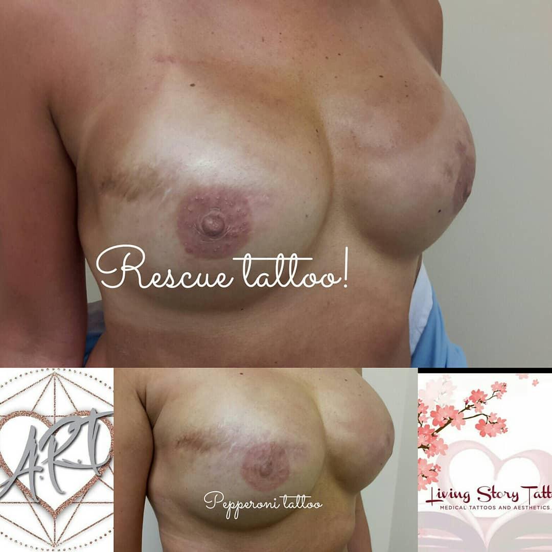 Bilateral corrective Healed 1st pass