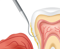 01. Your dental professional removes plaque and tartar above and below the gumline with SRP.