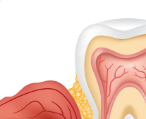 03. The antibiotic is released over time, helping to reduce bacteria as your gums heal.