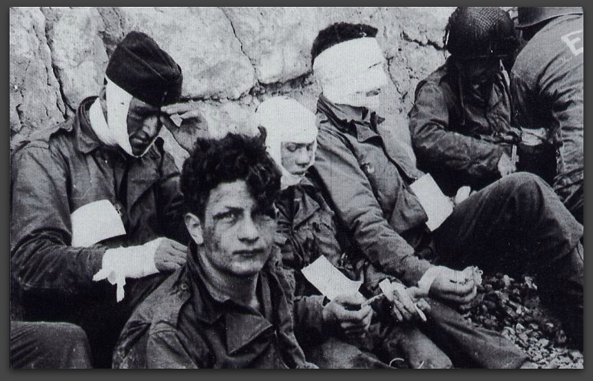 On D-Day more than 9,000 Allied Soldiers were killed or wounded.