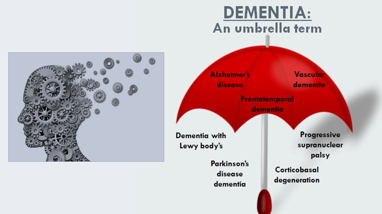 Dementia is an umbrella term for various forms of dementia and memory loss.
