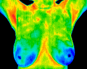Scan_healthy-breast.jpg