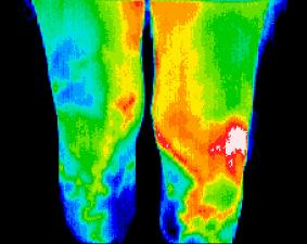 Scan_Knee-injury.jpg