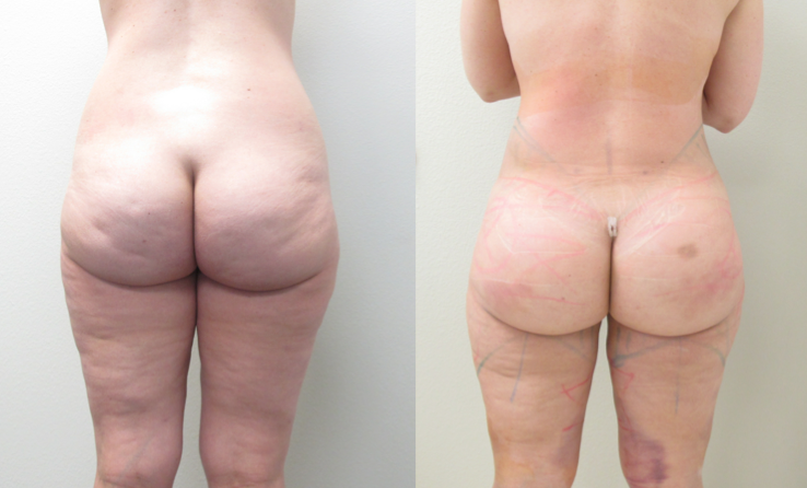 Figure 2:  Before & After photos of  Brazilian Butt Lift   (24 HOURS after Surgery.)  Procedure performed by Dr. Emmanuel De La Cruz in Houston, TX.