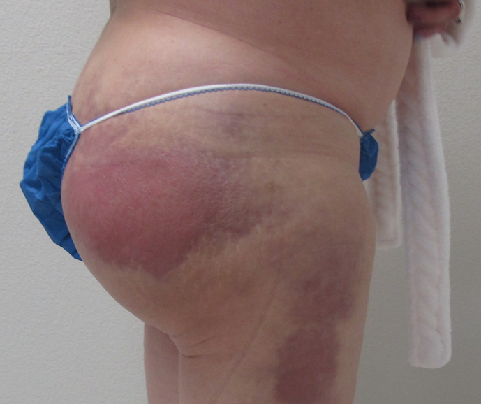 Figure 1:  Chronic infection from an Biopolymer injections into the buttocks and thighs performed by an unlicensed and unskilled practitioner.