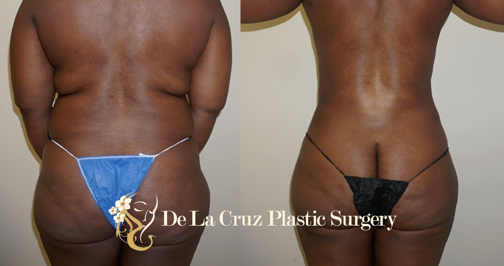 Before & After Photos of  VASER Liposuction  (6 weeks after surgery) performed by Emmanuel De La Cruz MD, PLLC.