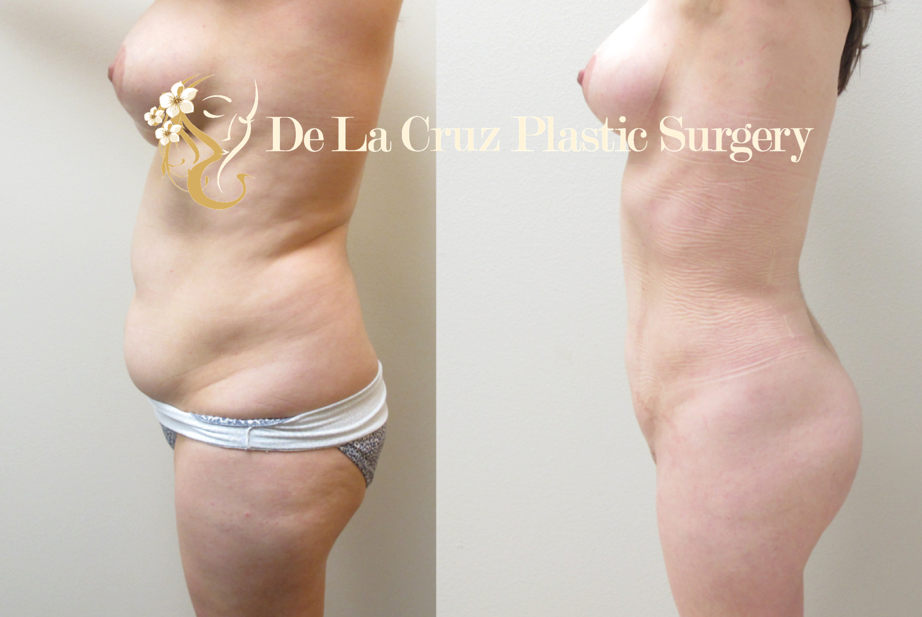 Before & After Photos:  4D VASER Liposuction 6 weeks after surgery.  Procedure performed by Dr. De La Cruz
