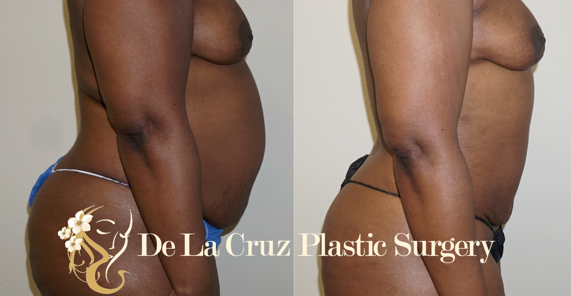Figure 1:  Before and After Photos (3 months after surgery) after VASER  Hi-Definition Liposuction  performed by Dr. De La Cruz.  Note that there was significant skin retraction after surgery.