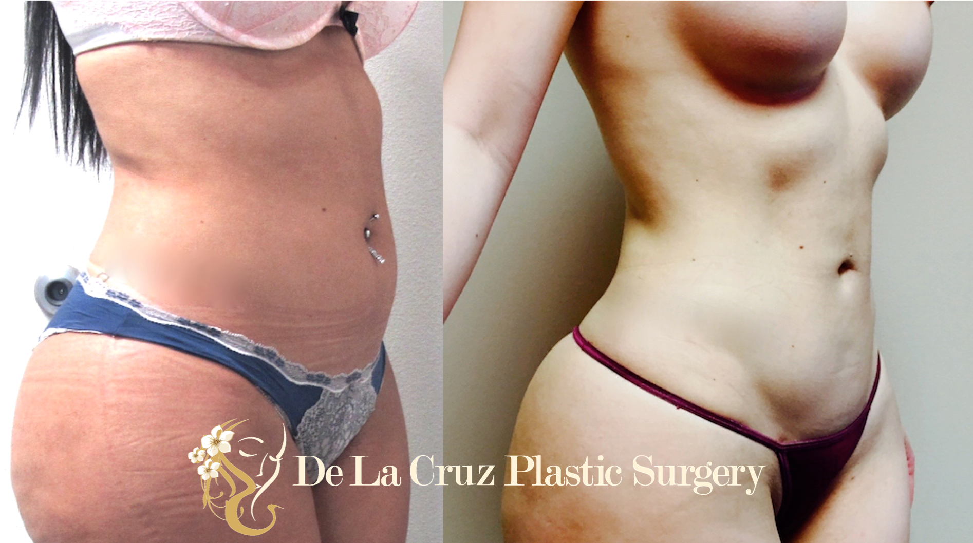 4D VASER Liposuction performed by Dr. Emmanuel De La Cruz of Houston, Texas