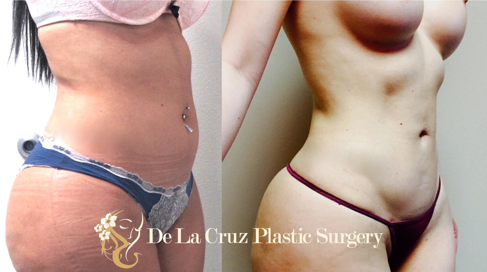 4D VASER Liposuction performed by Dr. Emmanuel De La Cruz of Houston, Texas