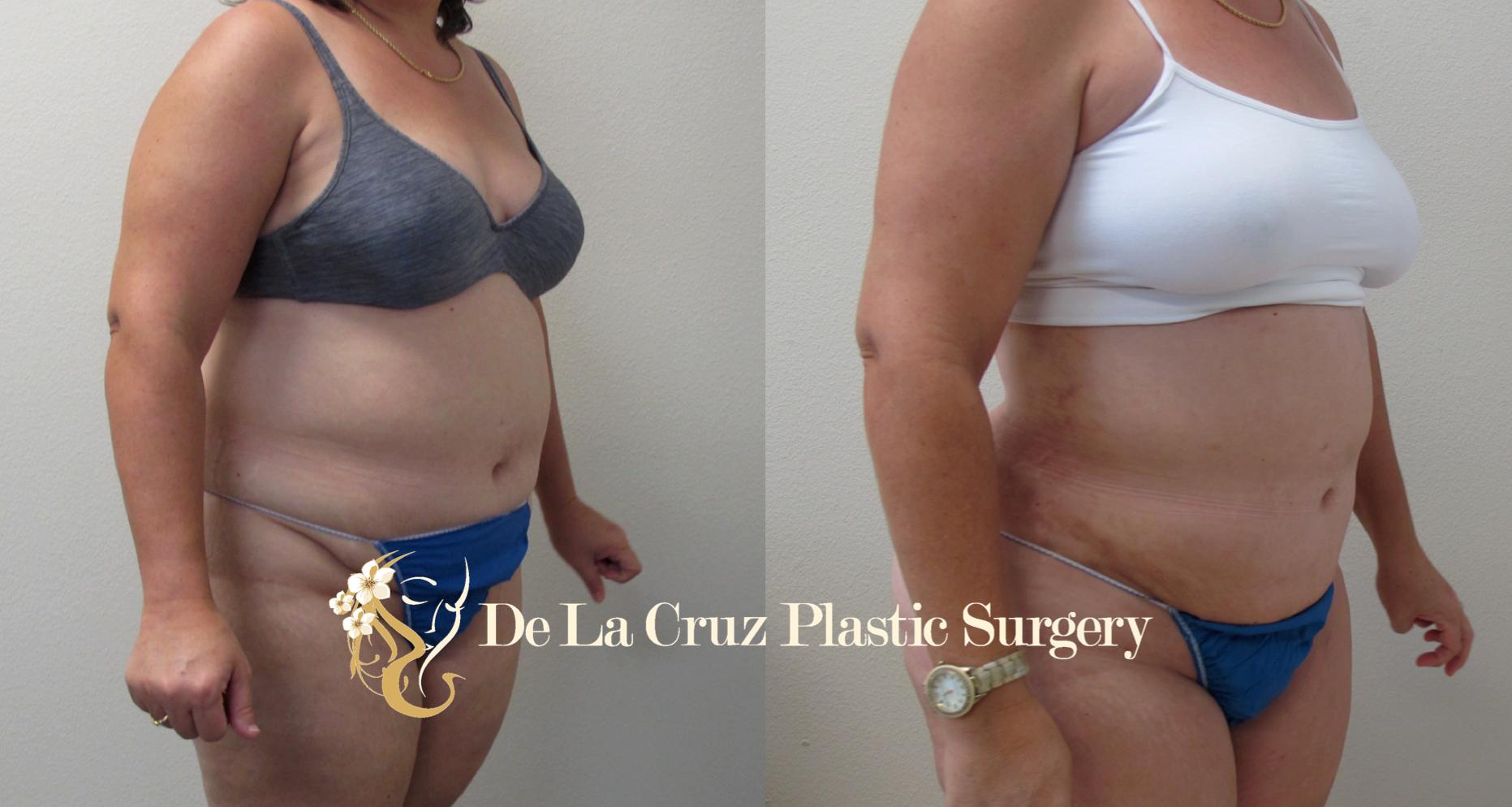 VASER Liposuction (Before and After 6 months of Surgery) performed by Dr. Emmanuel De La Cruz