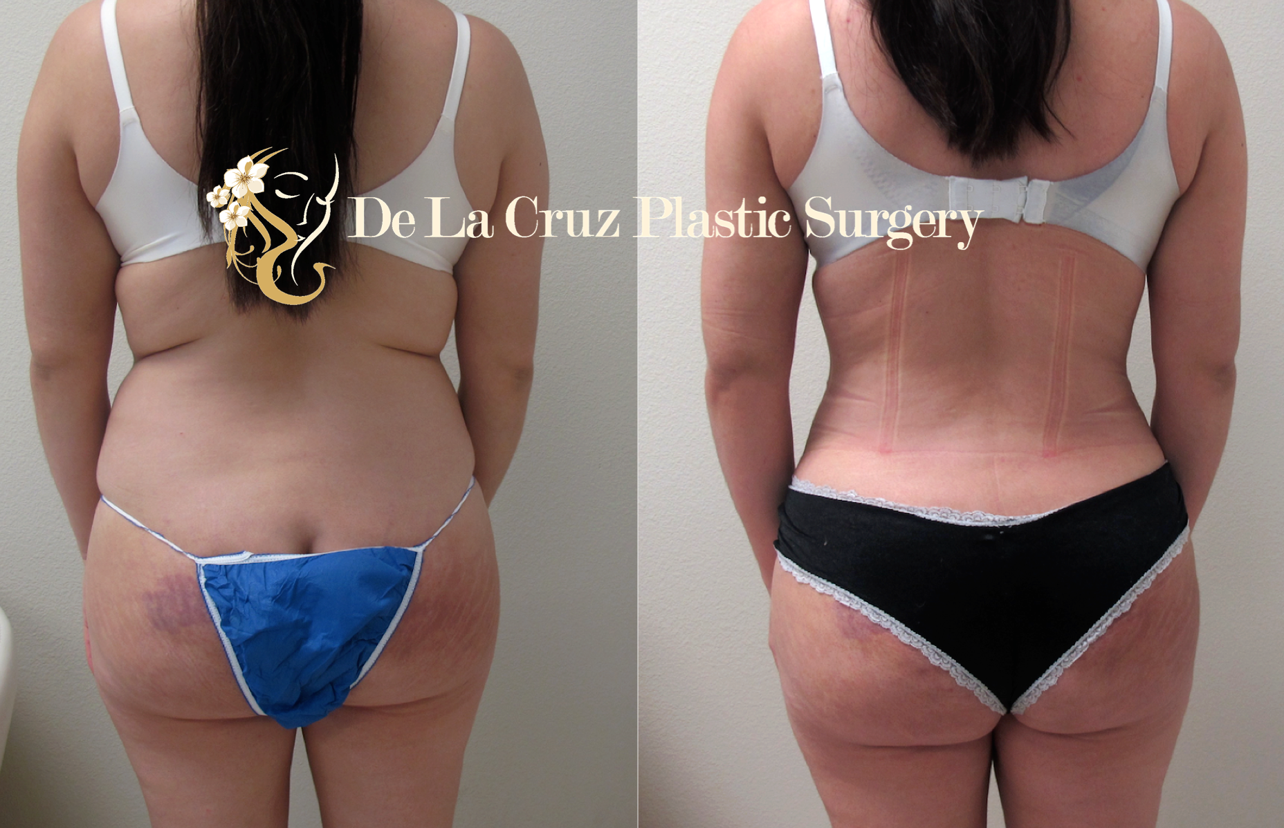 Before & After Photos of Hydrogel Removal using the VASER  Liposuction  with Fat transfer.  Patient's pain improved after surgery.  Procedure performed by Dr. Emmanuel De La Cruz, a Houston Plastic Surgeon.