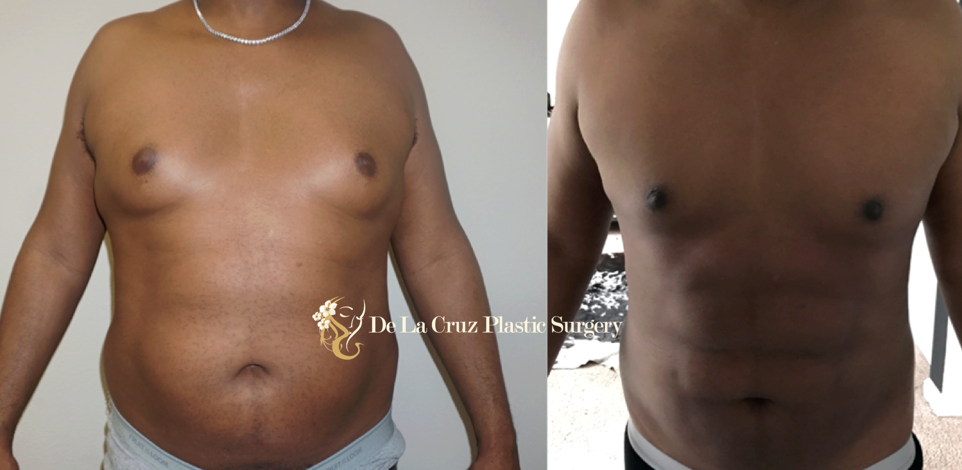 Before & After Photos of  VASER Liposuction  of the Breasts for treatment of Gynecomastia.  Note that the patient also underwent the 4D VASER Hi-Definition Liposuction.  Procedure performed by Dr. De La Cruz